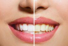 صورة 10 طرق فعالة لتبييض أسنانك داخل المنزل